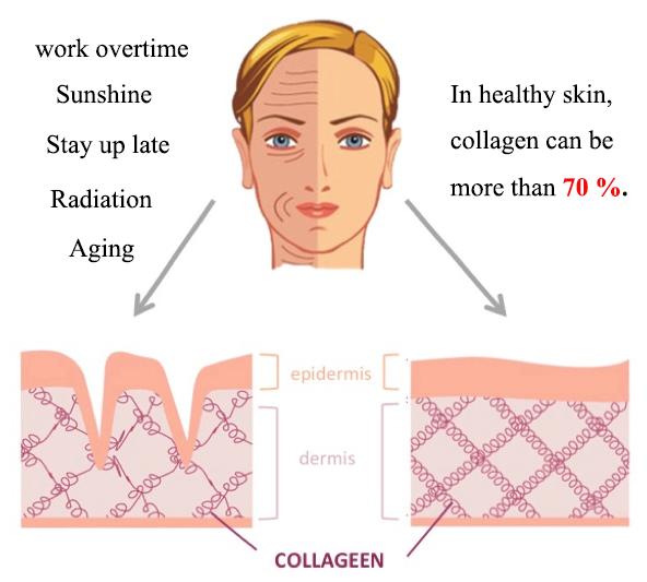 collagen in skin